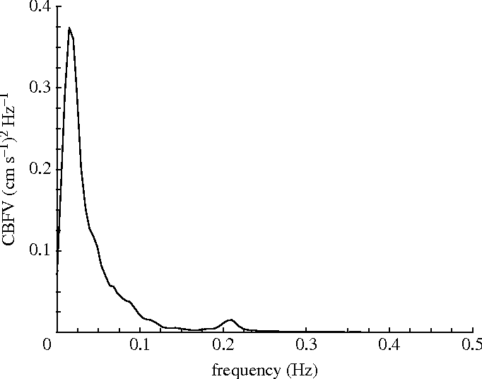 Figure 2. PSD for the mean CBFV signal represented in figure 1d. The small peak at approximately 0.2 Hz corresponds to the respiratory frequency.