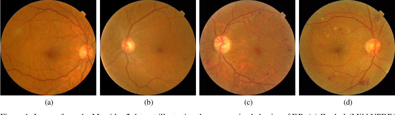 Figure 1 for Cost-Sensitive Regularization for Diabetic Retinopathy Grading from Eye Fundus Images