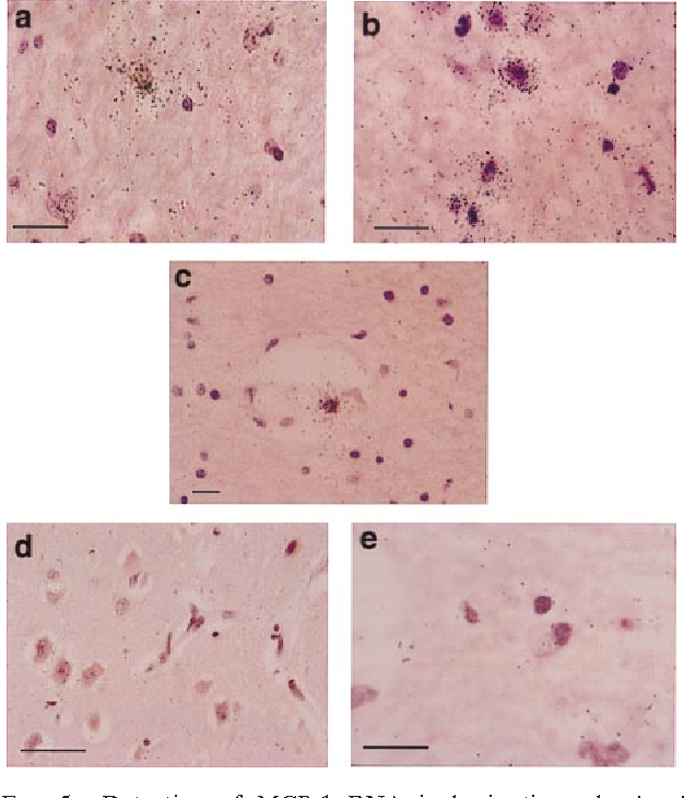 FIG. 5. Detection of MCP-1 RNA in brain tissue by in situ hybridization. Tissue sections were hybridized with an MCP-1 antisense probe. (a and b) Cells within the cerebral white matter of a HIVD patient show a strong signal for the presence of MCP-1 RNA. (c) Signal-positive cells are also seen in perivascular regions. A representative area from a normal patient shows absence of signal (d), as does a sample from an HIVD patient that was hybridized with an MCP-1 sense probe (e). (Scale bars represent 25 mm.)