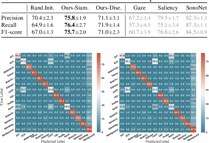 Figure 2 for Self-supervised Representation Learning for Ultrasound Video
