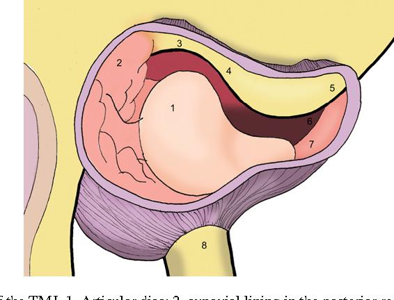 Arthroscopic anatomy and lysis and lavage of the temporomandibular ...