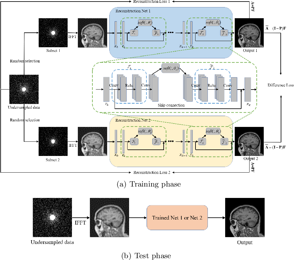 Figure 1 for Self-Supervised Learning for MRI Reconstruction with a Parallel Network Training Framework
