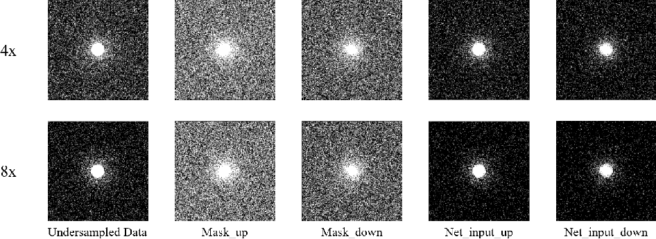 Figure 3 for Self-Supervised Learning for MRI Reconstruction with a Parallel Network Training Framework