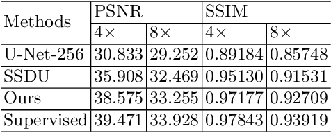 Figure 2 for Self-Supervised Learning for MRI Reconstruction with a Parallel Network Training Framework