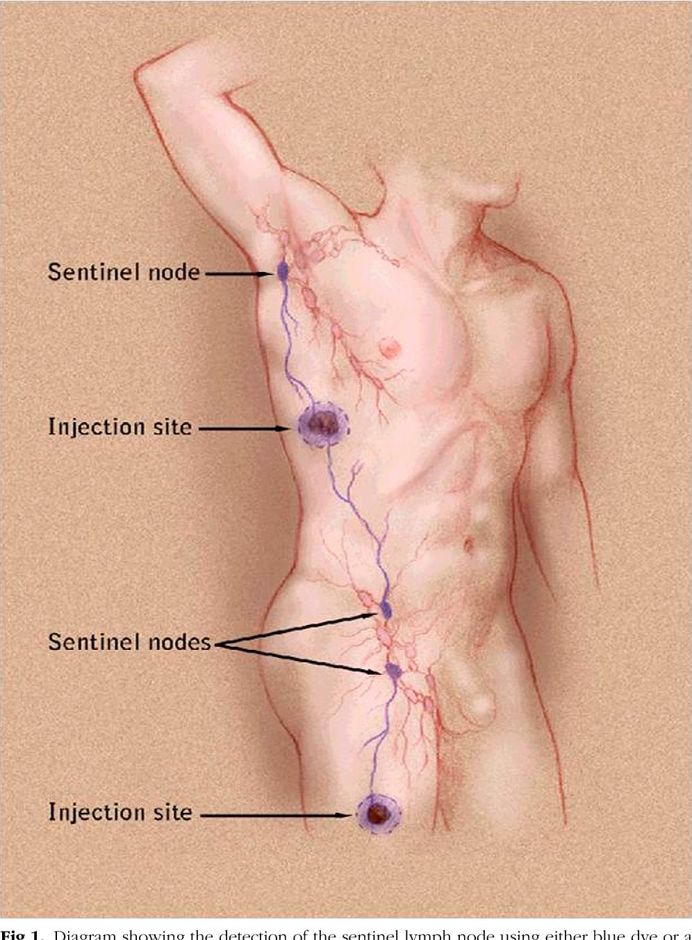 Sentinel lymph node biopsy and melanoma 2010 update part i figure 1 ccuart Gallery