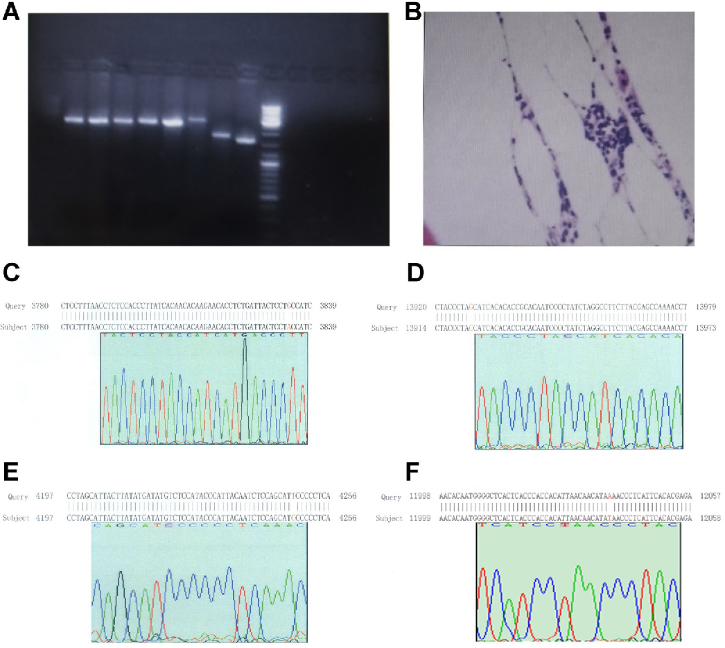 Figure 1. Electropherogram, bone marrow biopsy picture, and mutation of mtDNA. A. Electropherogram of 8 fragments; B. bone marrow biopsy of patient 1; C. G3834A mutation (arrow) was found in patient 1; D. G13928C mutation was found in patient 3; E. T4248C mutation was found in patient 6; F. A12038T mutation was found in patient 15; Query = revised Cambridge Reference Sequence; Subject = sequence of patients.