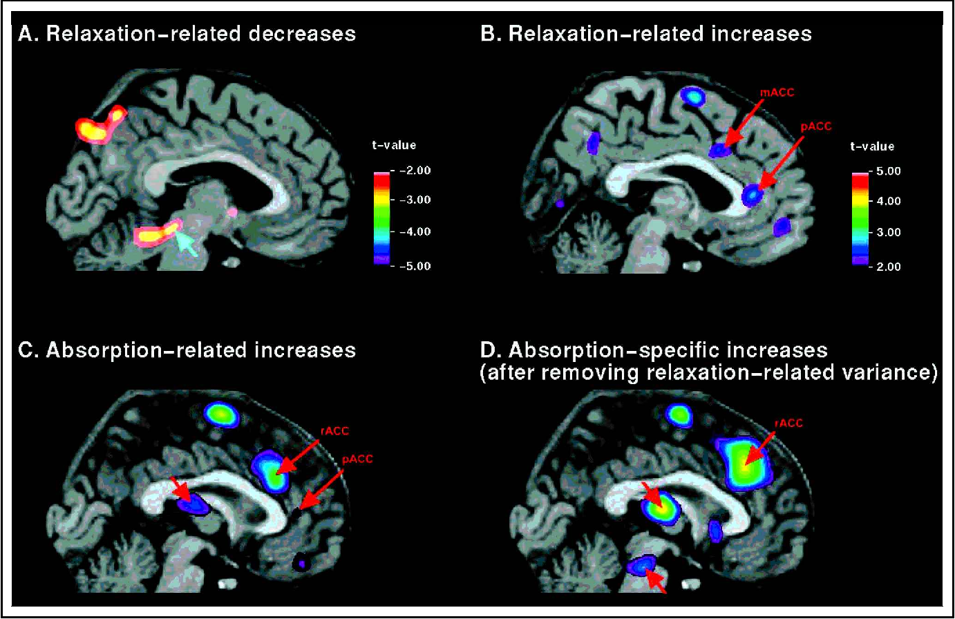 Hypnosis Modulates Activity In Brain Structures Involved In The