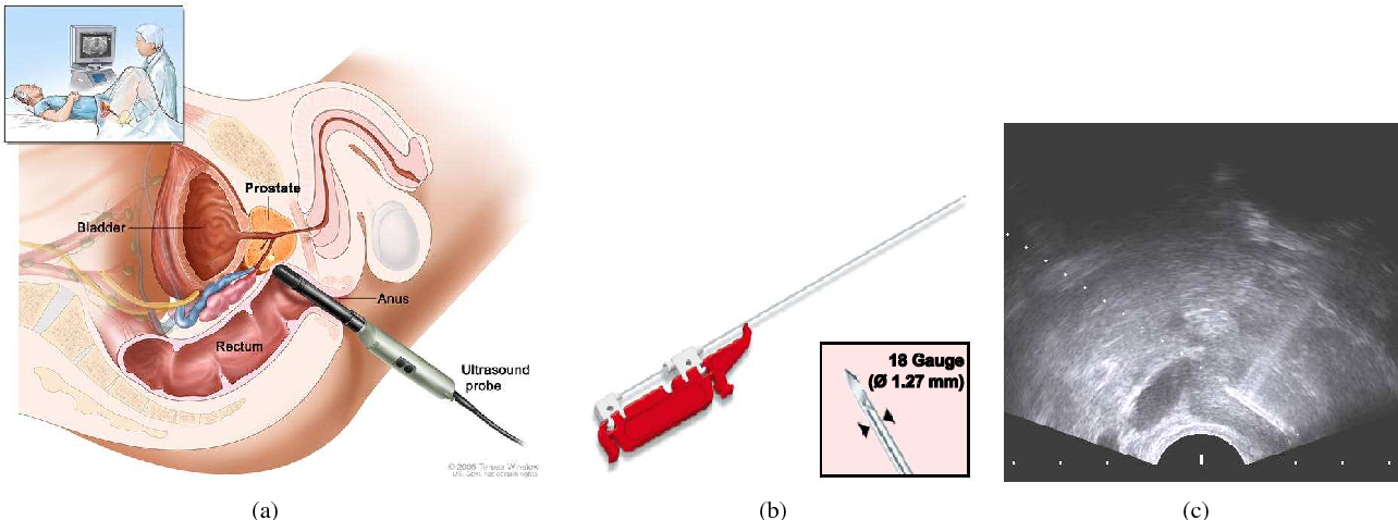 Figure 1 for Prostate biopsy tracking with deformation estimation