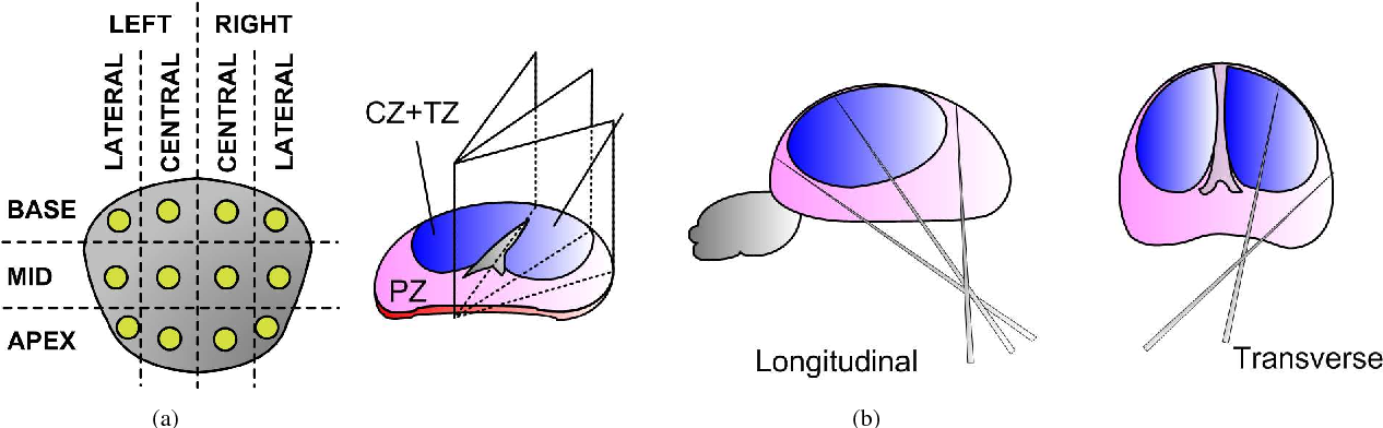 Figure 3 for Prostate biopsy tracking with deformation estimation