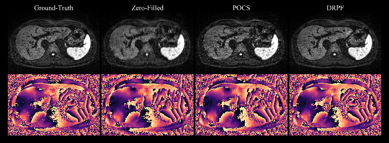 Figure 4 for Robust partial Fourier reconstruction for diffusion-weighted imaging using a recurrent convolutional neural network