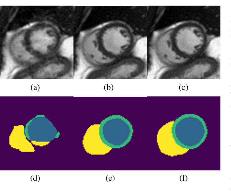 Figure 1 for Deep Learning Based Detection and Correction of Cardiac MR Motion Artefacts During Reconstruction for High-Quality Segmentation