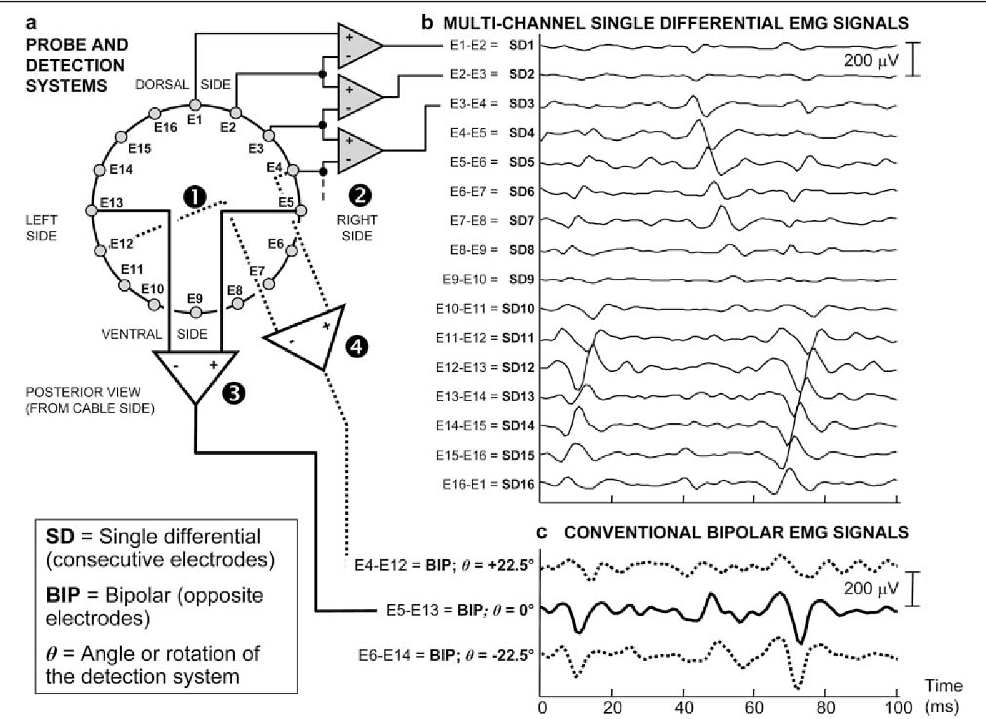 Multichannel Surface Emg For The Non Invasive Assessment Of The Anal