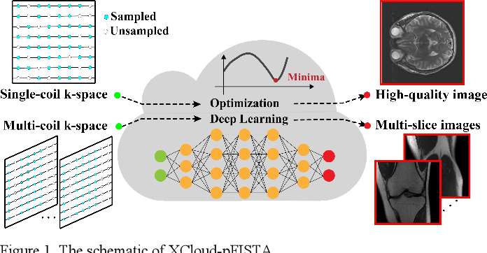 Figure 1 for XCloud-pFISTA: A Medical Intelligence Cloud for Accelerated MRI