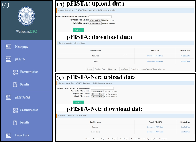 Figure 4 for XCloud-pFISTA: A Medical Intelligence Cloud for Accelerated MRI