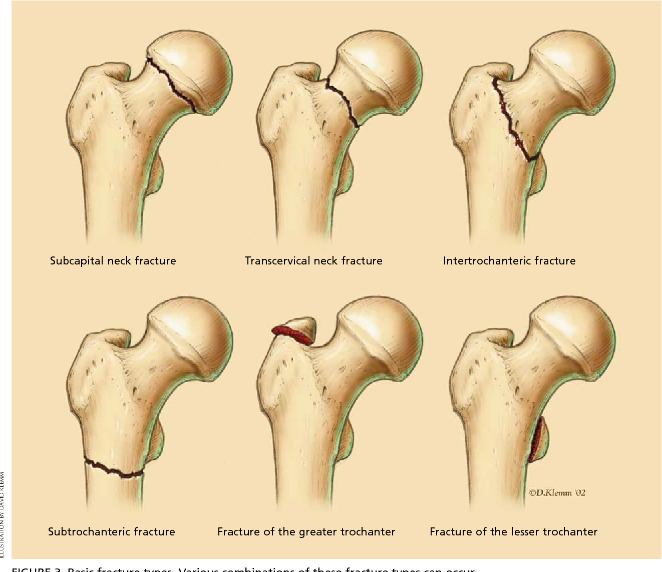 Figure 3 From Hip Fractures In Adults Semantic Scholar