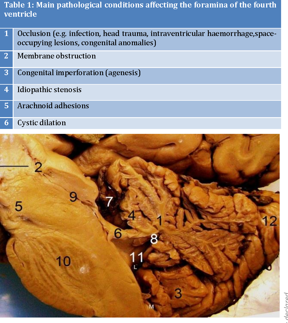 Clinical anatomy of the fourth ventricle foramina - Semantic Scholar