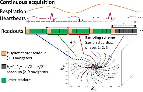 Figure 1 for 2-D Respiration Navigation Framework for 3-D Continuous Cardiac Magnetic Resonance Imaging