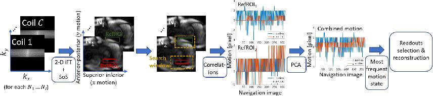 Figure 3 for 2-D Respiration Navigation Framework for 3-D Continuous Cardiac Magnetic Resonance Imaging