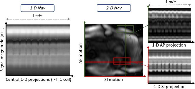 Figure 4 for 2-D Respiration Navigation Framework for 3-D Continuous Cardiac Magnetic Resonance Imaging