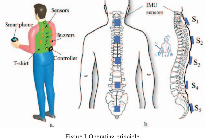 Figure 1 From Real Time Representation Of The Human Spine With