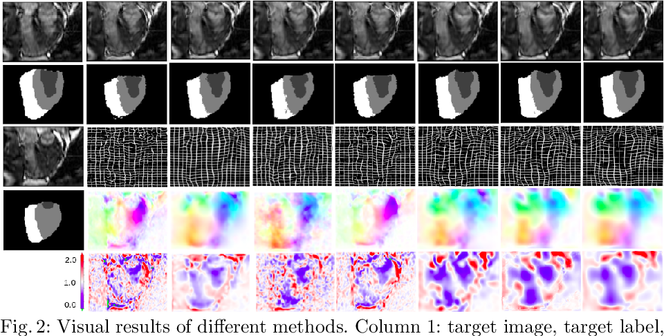 Figure 4 for Nesterov Accelerated ADMM for Fast Diffeomorphic Image Registration