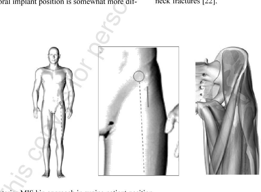 Fig. 2. Direct anterior MIS hip approach in supine patient position