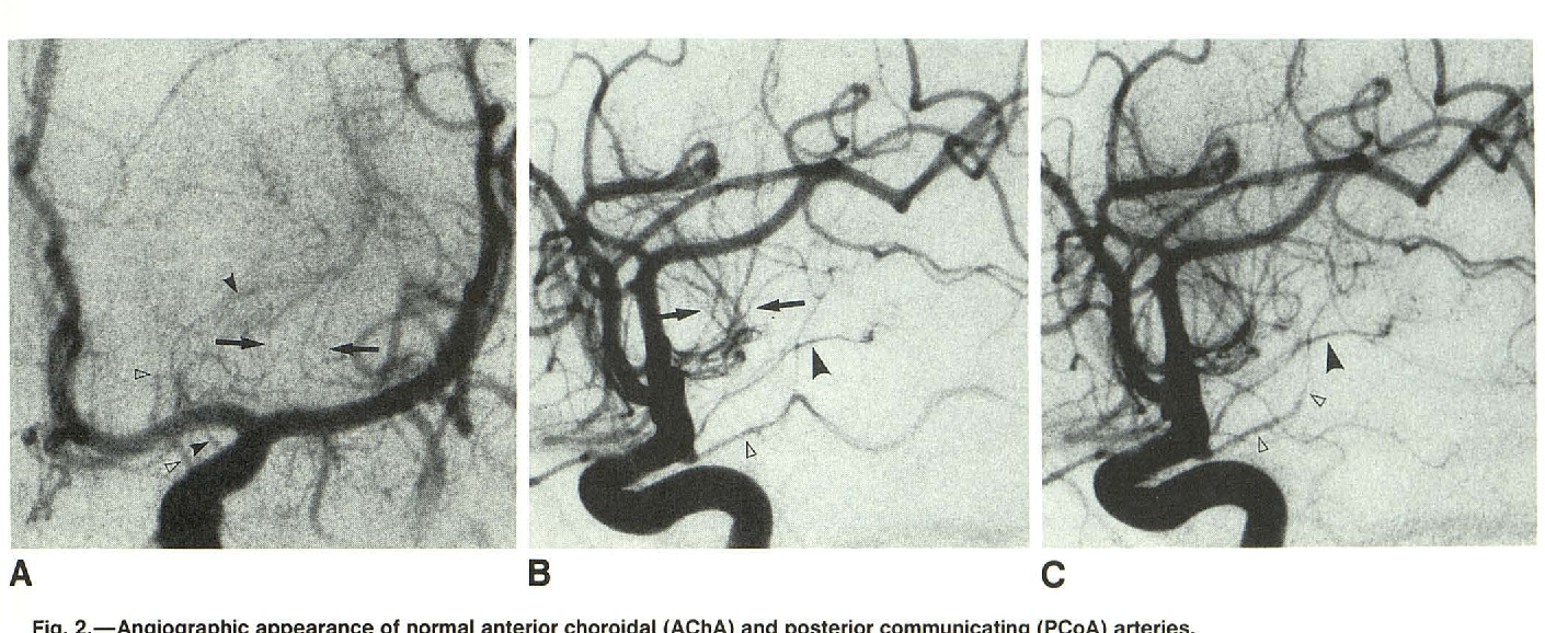Anterior Choroidal Artery Angiographic Analysis Of Variations And