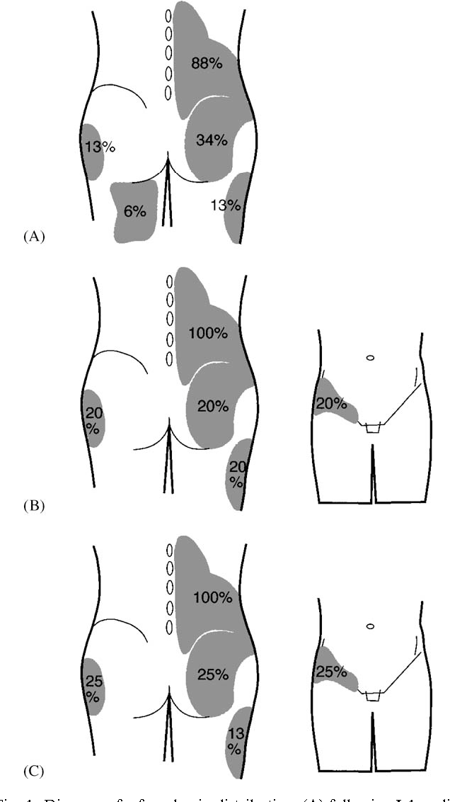 The Lumbar Multifidus Muscle And Patterns Of Pain Semantic Scholar Adorable Referred Pain Patterns
