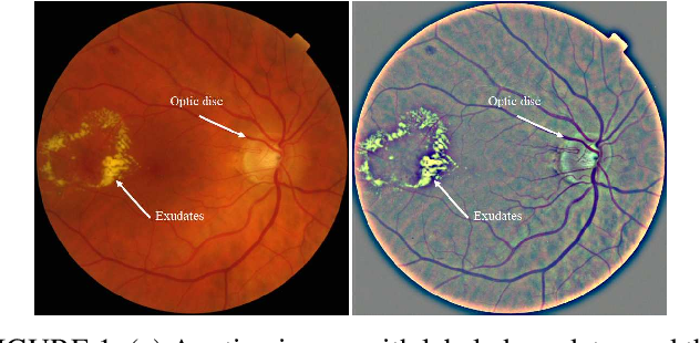 Figure 1 for W-net: Simultaneous segmentation of multi-anatomical retinal structures using a multi-task deep neural network