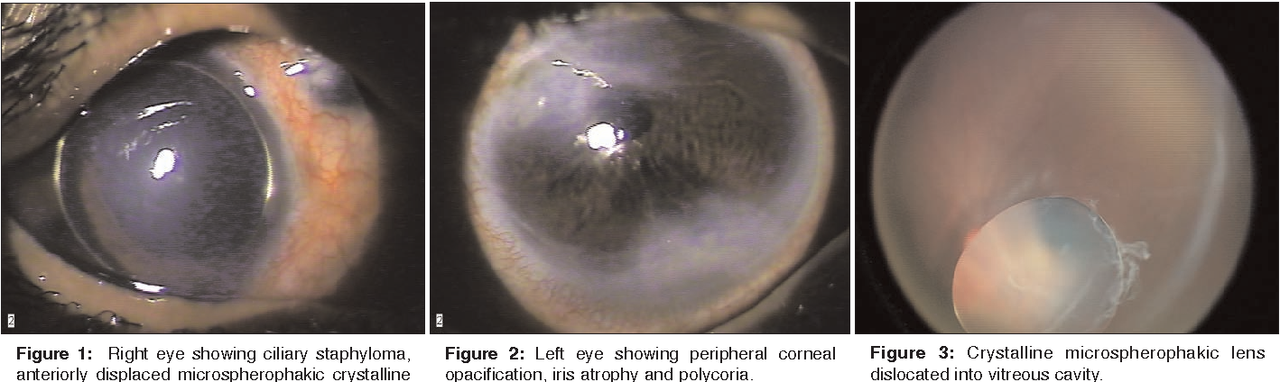 5f6ac95cb2f8 Figure 1 from Bilateral iridocorneal endothelial (ICE) syndrome with ...