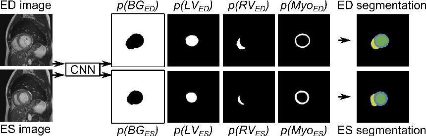 Figure 1 for Automatic Segmentation and Disease Classification Using Cardiac Cine MR Images