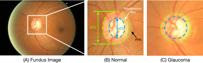 Figure 1 for Joint Optic Disc and Cup Segmentation Based on Multi-label Deep Network and Polar Transformation