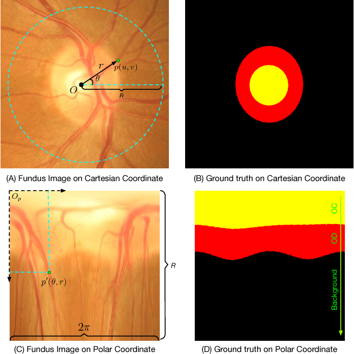 Figure 3 for Joint Optic Disc and Cup Segmentation Based on Multi-label Deep Network and Polar Transformation