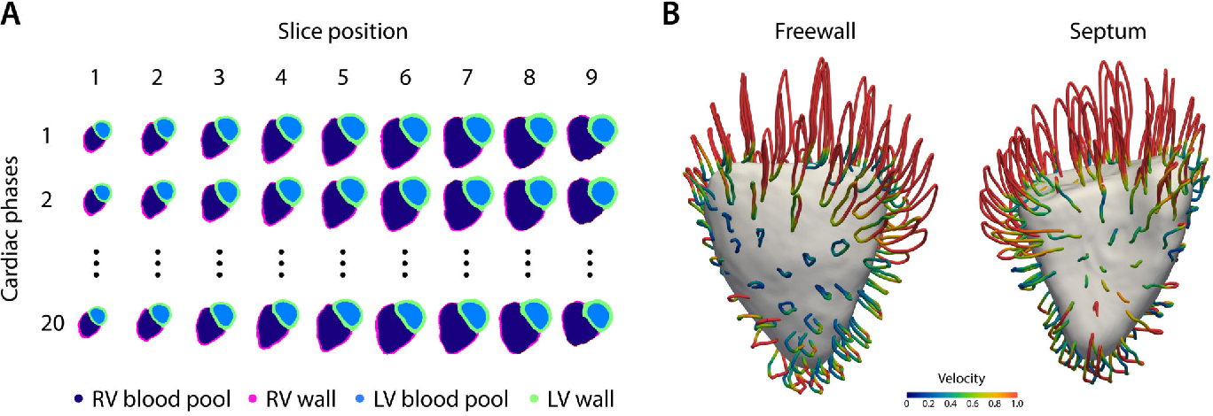 Figure 1 for Deep learning cardiac motion analysis for human survival prediction