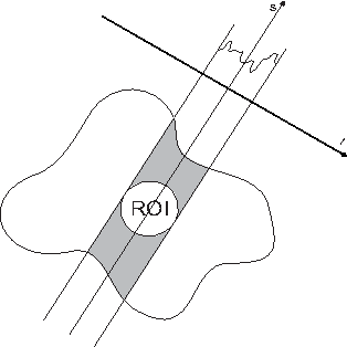 Fig. 1. Truncated projections in 2D parallel case