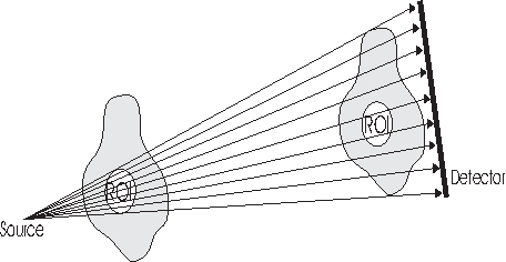 Fig. 2. Only transaxial truncation can be solved