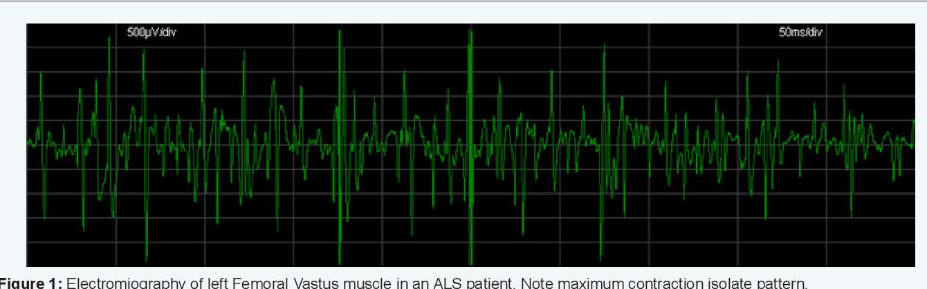 PDF] ALS Diagnostic in the Electrodiagnostic Department of
