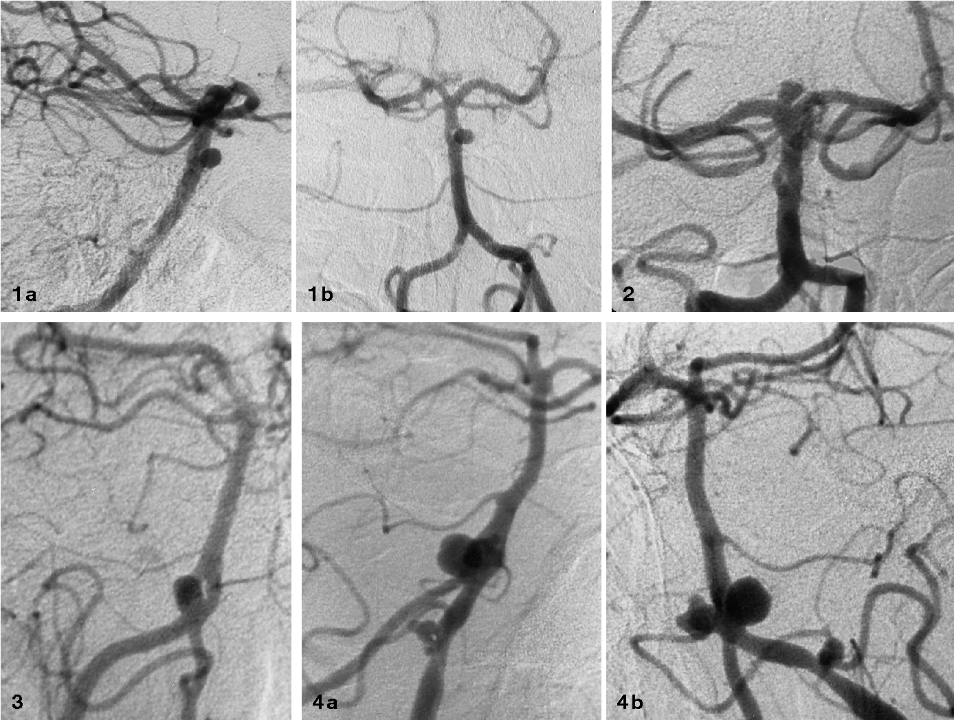 Basilar artery fenestration in association with aneurysms of the ...