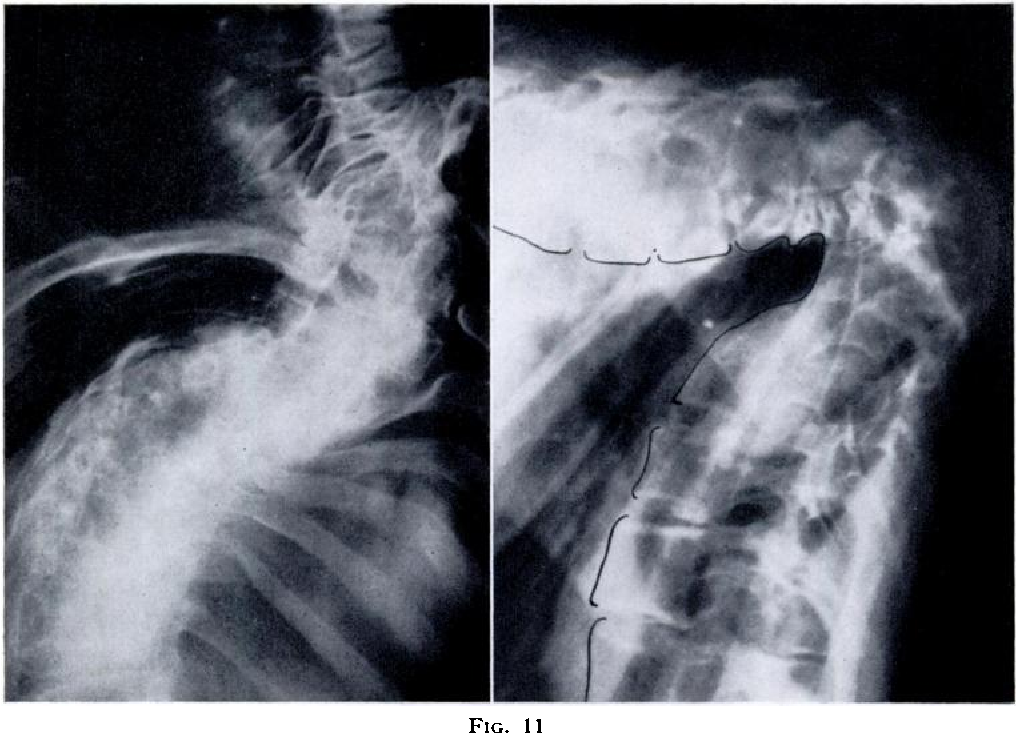 Figure Ii From Kyphoscoliosis Semantic Scholar