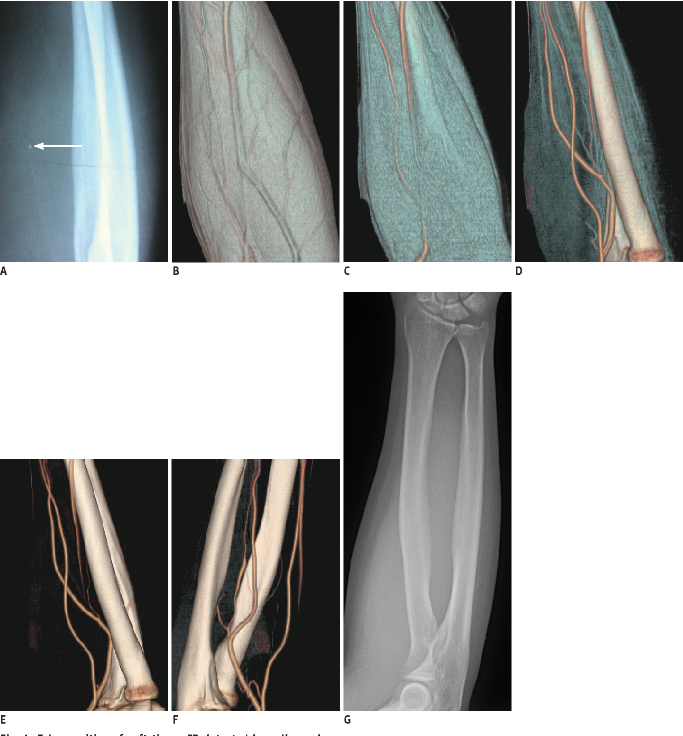Value of 3-Dimensional CT Virtual Anatomy Imaging in Complex Foreign ...