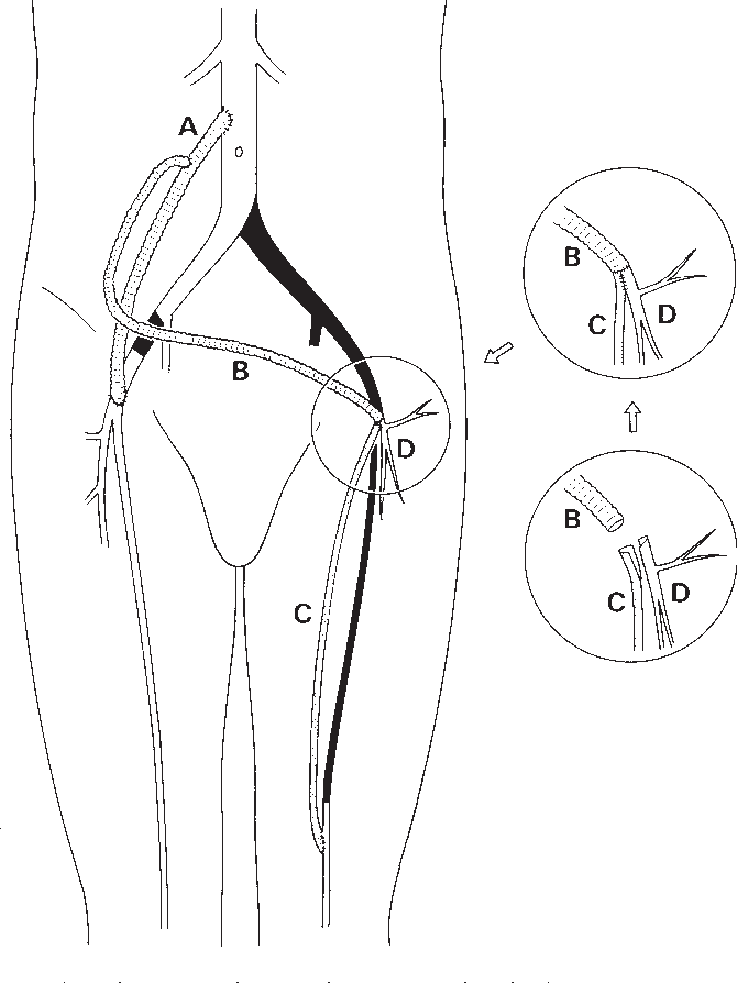 Utilization Of The Lateral Circumflex Femoral Artery As A Midway