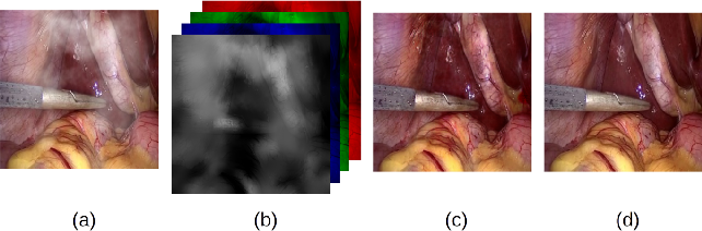 Figure 1 for Desmoking laparoscopy surgery images using an image-to-image translation guided by an embedded dark channel