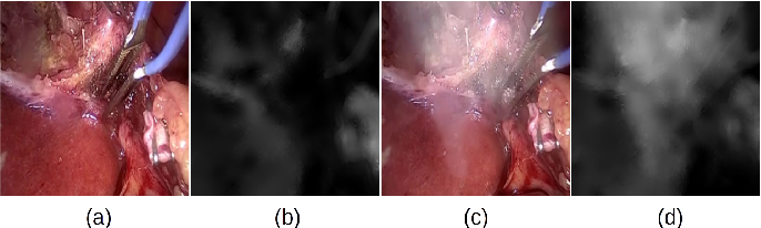 Figure 4 for Desmoking laparoscopy surgery images using an image-to-image translation guided by an embedded dark channel