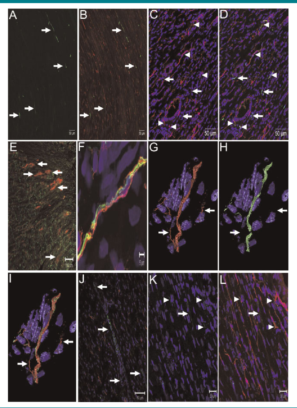 Neural Remodelling Of The 1 Week Post MI Rat Heart
