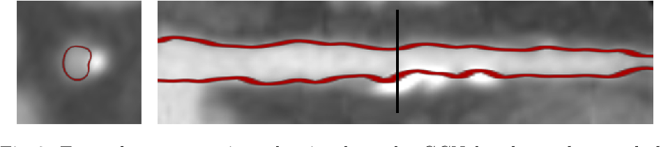 Figure 4 for Graph Convolutional Networks for Coronary Artery Segmentation in Cardiac CT Angiography