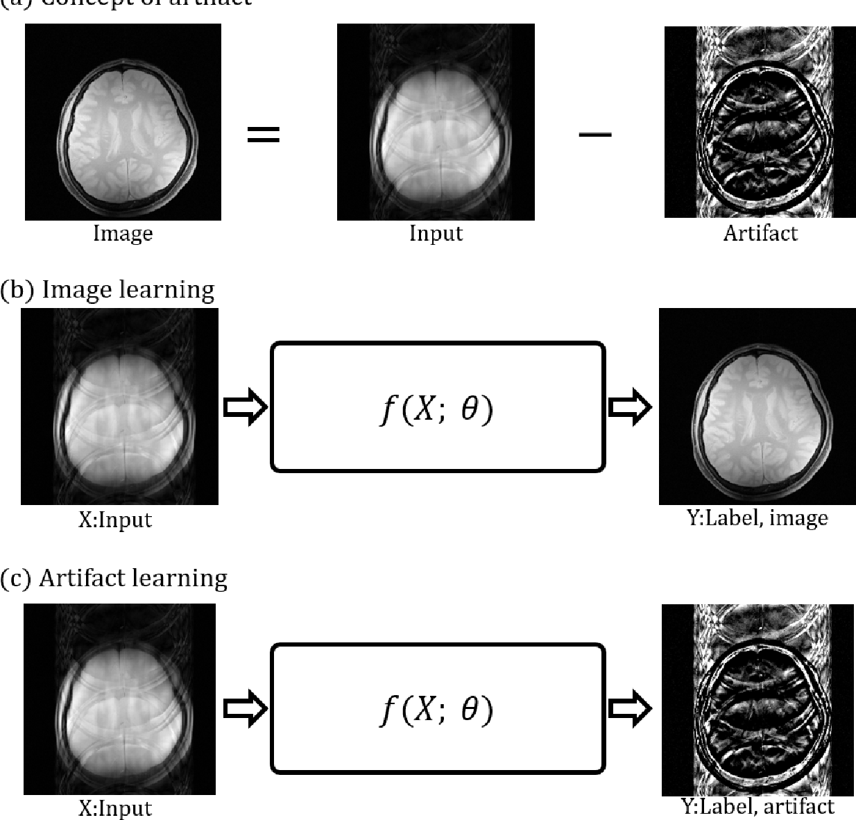 Figure 1 for Deep artifact learning for compressed sensing and parallel MRI