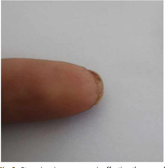 Figure 2 from Diagnosis using the nail bed and hyponychium ...