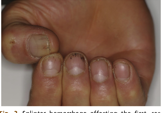 Figure 3 from Diagnosis using the nail bed and hyponychium