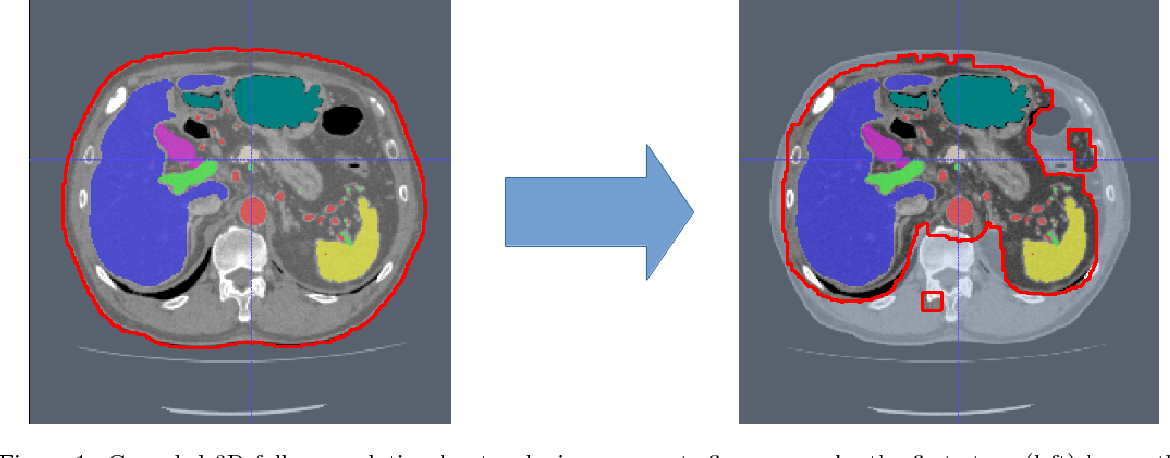 Figure 1 for An application of cascaded 3D fully convolutional networks for medical image segmentation