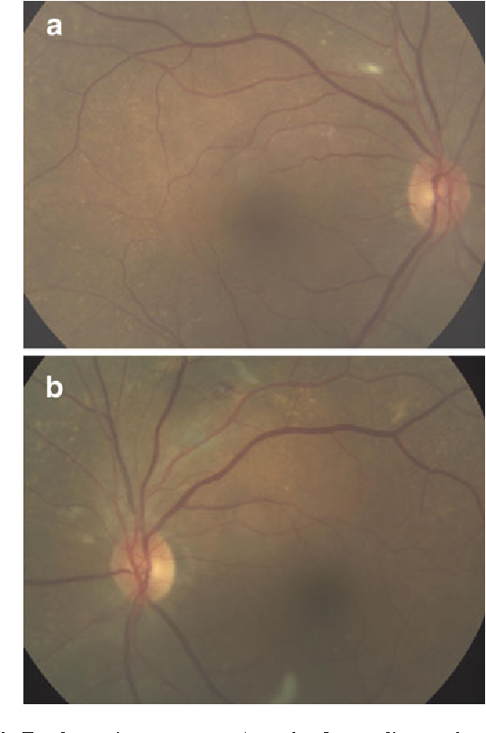 Fig. 2 Funduscopic appearance 1 week after cardiovascular surgery. Cotton wool spots (CWS) were observed in the right eye (a), while CWS with a small retinal hemorrhage were observed in the left (b)